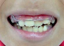 El acorchetar dental Foto de archivo
