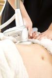 El adelgazar y tratamiento de las celulitis en la clínica Foto de archivo libre de regalías