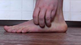 El adolescente rasguña sus pies y dedos del pie debido a alergias almacen de metraje de vídeo