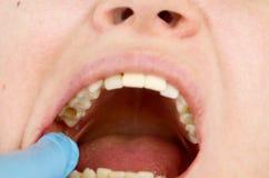 El agujero en el diente y el tratamiento de canales dentales Tratamiento del periodontitis en la clínica dental imagenes de archivo