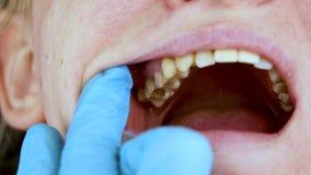 El agujero en el diente y el tratamiento de canales dentales Tratamiento del periodontitis en la clínica dental almacen de video