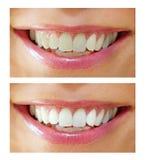 El blanquear del diente - antes, después Imágenes de archivo libres de regalías