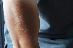 El brazo de la quemadura, piel malsana quemó la peladura después de jugar la resaca sin protegido por Sunblock imagenes de archivo