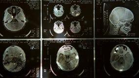 El brillar intensamente y exploración radiante de MRI almacen de video