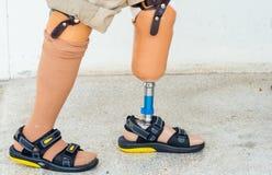El caminar bilateral del amputado imagen de archivo