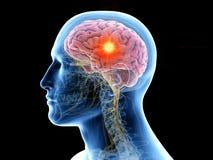 el cerebro humano y un tumor ilustración del vector