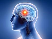 el cerebro humano y un tumor libre illustration