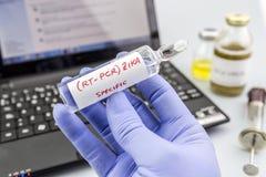 El científico con los guantes azules del látex sostiene los frascos de virus de ZIKA Imágenes de archivo libres de regalías
