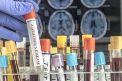 El científico sostiene la muestra de sangre para investigar el remedio contra enfermedad de Alzheimer imágenes de archivo libres de regalías