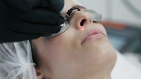 El cierre encima de las manos del cosmetólogo hace laser retiro vascular en la cara de la mujer con el equipo especial metrajes