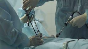 El cirujano hace una operación almacen de metraje de vídeo