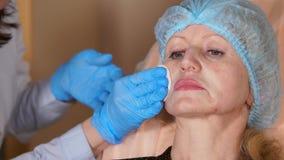El control del doctor la piel del paciente a las deshonras con una esponja con alcohol almacen de metraje de vídeo