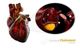 El corazón como ejemplo, vaso sanguíneo bloqueado, arteria con la acumulación del colesterol, ejemplo aisló blanco Imágenes de archivo libres de regalías