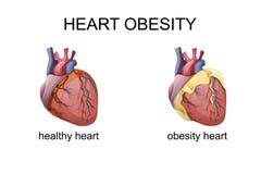 El corazón de la obesidad stock de ilustración