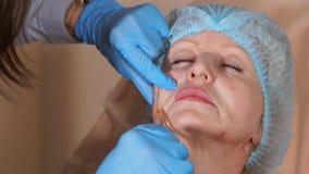 El cosmetólogo del doctor inyecta la cánula en la mejilla de una mujer de mediana edad metrajes
