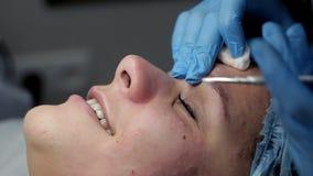 El cosmetólogo hace un limpiamiento del área de la nariz durante el procedimiento del limpiamiento facial mecánico almacen de video