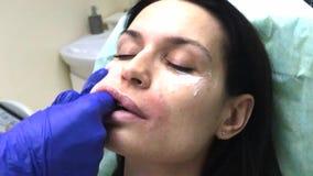 El cosmetologist del dermatólogo del doctor realiza masaje de los labios después de plástico del contorno almacen de metraje de vídeo