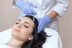 El cosmetologist del doctor hace el procedimiento de mesotherapy en cabeza del ` s de la mujer fotos de archivo