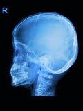 El cráneo de los niños radiografía imagen Fotografía de archivo libre de regalías