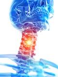 El cuello cervical que muestra dolor ilustración del vector