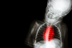 El cuerpo del niño de la radiografía con enfermedad cardíaca congénita Imágenes de archivo libres de regalías