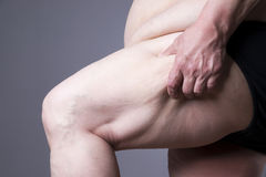 El cuerpo femenino de la obesidad, las piernas gordas de la mujer se cierra para arriba foto de archivo libre de regalías