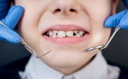 El dentista de sexo femenino examina los dientes del niño paciente Imagen de archivo