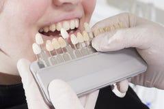 El dentista elige el blanco de dientes Foto de archivo libre de regalías