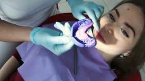 El dentista hace un molde de los dientes para la odontología almacen de metraje de vídeo