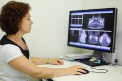 El dentista mira radiografías de la quijada el monitor del ordenador Imágenes de archivo libres de regalías