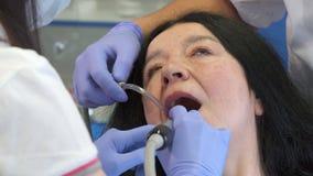 El dentista pule dientes más bajos del ` s del cliente almacen de video
