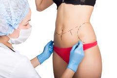 El doctor de sexo femenino hace la línea de puntos en el cuerpo femenino para la corrección de las celulitis Cirugía cosmética el Imagen de archivo libre de regalías