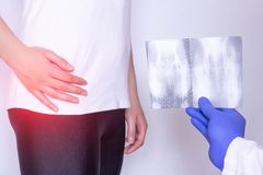 El doctor lleva a cabo la imagen de la radiografía en el fondo de una muchacha con una junta de cadera dolorida y una hernia inte fotos de archivo