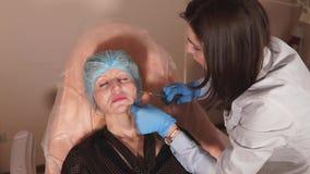 El doctor lleva una preparación en base del ácido hialurónico con una aguja de la cánula metrajes