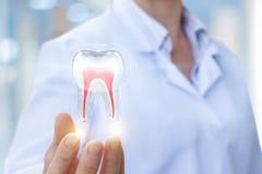 El doctor muestra el diente foto de archivo