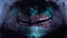 El doctor muestra los dientes en una imagen de la radiografía Un dentista que lleva a cabo una radiografía mientras que mira Prim almacen de metraje de vídeo