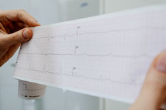 El doctor sostiene un encefalograma de un paciente sano Imagen de archivo libre de regalías