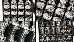 El doctor ve las ?reas problem?ticas de la parte posterior en la exploraci?n o la radiograf?a de MRI metrajes