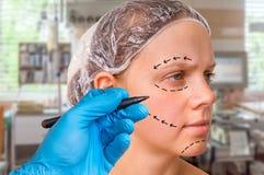El drenaje del doctor de la cirugía plástica alinea con el marcador en cara paciente Foto de archivo libre de regalías