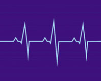 El electrocardiograma Fotografía de archivo
