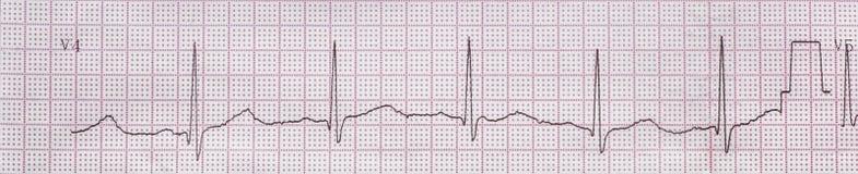 El electrocardiograma cardiaco, fondo Imágenes de archivo libres de regalías