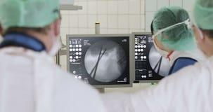 El equipo de cirujanos controla la operación en las exhibiciones almacen de metraje de vídeo