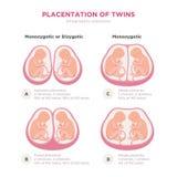 El gemelo mecanografía elementos infographic en diseño plano Placentation monozigótico o dicigótico del ejemplo médico de los gem libre illustration