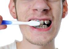 El hombre adulto joven aplica los dientes con brocha Fotografía de archivo