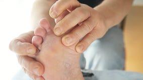 El hombre comprueba el pie de atletas entre los dedos del pie almacen de video