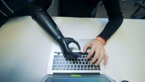 El hombre con la mano artificial mecanografía en un ordenador portátil Concepto del Cyborg