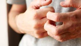 El hombre rasgu?a sus manos Fingeres muy que pica, psoriasis metrajes