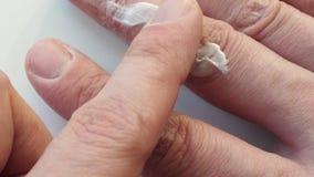 El hombre utiliza la crema para la piel agrietada seca en un brazo dermatología almacen de video