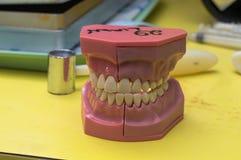 El molde dental abandonó la oficina de los dentistas fotos de archivo libres de regalías