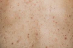 El muchacho con la piel y el acné problemáticos marca con una cicatriz en la parte posterior Fotografía de archivo libre de regalías